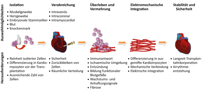 Stammzellentherapie diabetes y alcohol